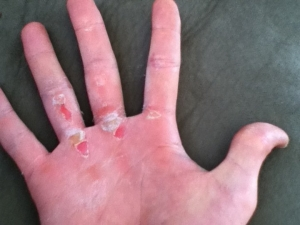 Callus Due to Not Wearing Weight Training Gloves